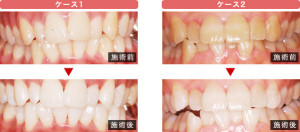 whitening_case_ph